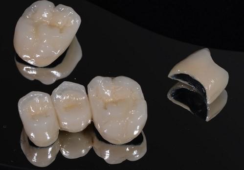 Có NÊN bọc răng sứ Titan không