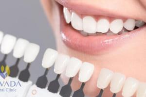 Dán răng sứ Veneer bao nhiêu tiền tại Nha khoa Quốc tế Nevada