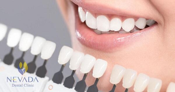 Phủ răng sứ là gì