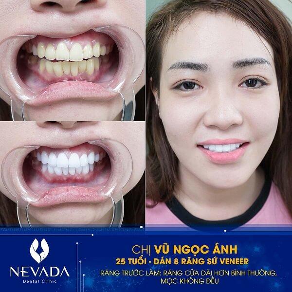 Phủ răng sứ là gì?