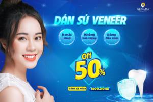Dán sứ Veneer: Răng trắng đều, đẹp chuẩn đường cười – Khuyến mại sốc