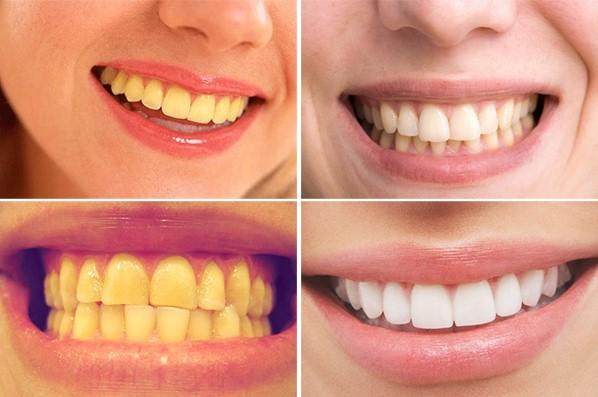 Răng bị ố vàng làm sao để trắng