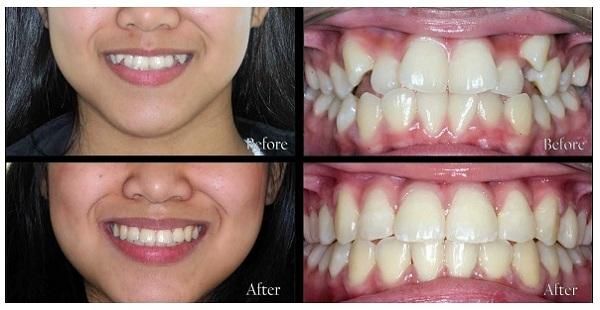 răng lệch lạc nên niềng hay bọc sứ,răng lệch,răng lệch lạc,niềng răng lệch lạc,niềng răng lệch lạc là gì,sửa răng lệch,răng lệch lạc chữa thế nào,niềng răng lệch lạc mất bao lâu,giá chỉnh răng lệch lạc