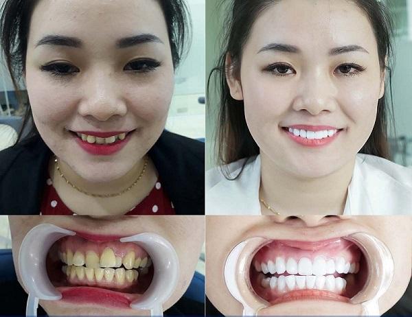 răng lệch lạc nên niềng hay bọc sứ, niềng răng lệch lạc, niềng răng lệch lạc là gì, sửa răng lệch, răng lệch lạc chữa thế nào, niềng răng lệch lạc mất bao lâu, giá chỉnh răng lệch lạc