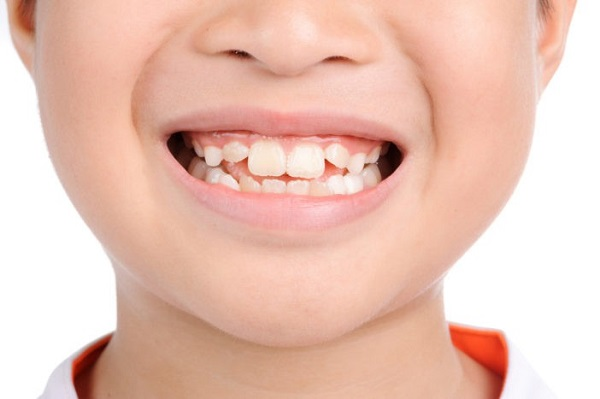 chỉnh răng mọc lệch không cần niềng, chỉnh răng lệch không cần niềng