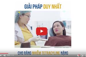 Giải pháp nào cho răng nhiễm kháng sinh Tetracycline