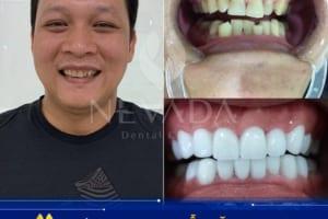 Răng sứ Ceramill Zolid   Loại răng sứ có khả năng cảm nhận thức ăn như răng thật