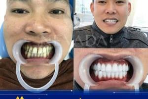 Lý giải sức hút của bọc răng sứ Cercon HT là gì và có tốt không