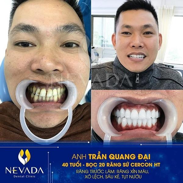 răng sứ cercon ht,răng sứ cercon ht là gì,răng sứ cercon ht có tốt không