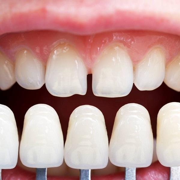 Răng sứ Dmax Kim cương