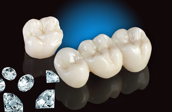 Răng sứ Dmax Kim cương, răng sứ kim cương, bọc răng kim cương, Răng sứ Dmax Kim Cương, Bọc Răng sứ Dmax Kim Cương, Răng bọc sứ Dmax Kim Cương, Răng sứ Dmax Kim Cương là gì, răng sứ kim cương Dmax, Bọc Răng sứ kim cương Dmax