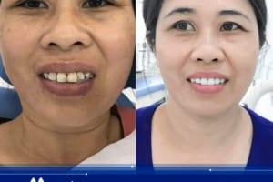 Có NÊN bọc răng sứ Titan | Chi phí và bảo hành ra sao?