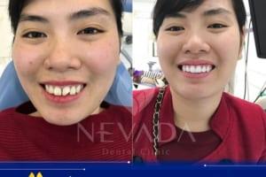 Răng sứ Venus HT- Răng sứ thế hệ mới | OFF 50% chi phí bọc răng sứ tại Nevada