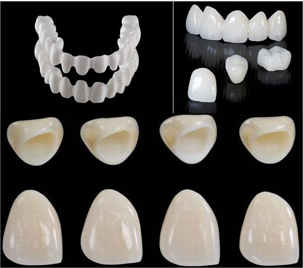 răng sứ venus ht, răng toàn sứ venus ht