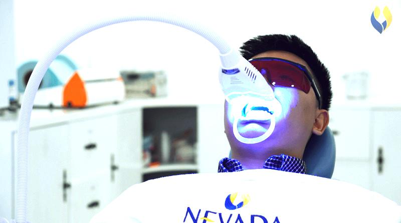 làm trắng răng có hại không, có nên đi tẩy trắng răng, tẩy trắng răng, tẩy trắng răng có hại, tẩy trắng răng có đau, tẩy trắng răng có hại không, tẩy trắng răng có đau không