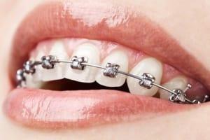 Bảng giá niềng răng mắc cài | Khuyến mãi sốc từ Nha khoa Quốc tế