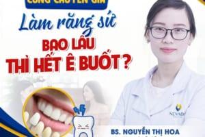 Bọc răng sứ bị ê buốt bao lâu thì hết?