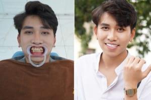 """Diễn viên Phùng Thắng: """"Thoát mác diễn viên quần chúng nhờ bọc răng sứ"""""""