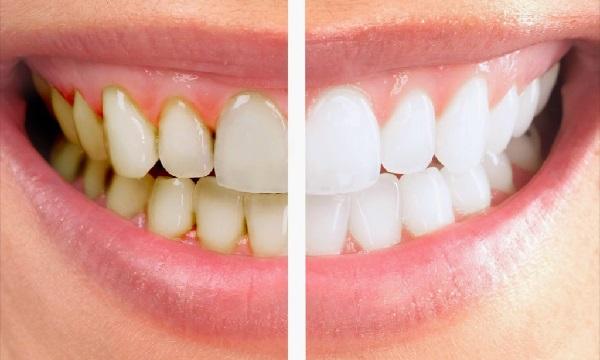 có nên lấy cao răng không,có nên lấy cao răng thường xuyên không,có nên đi lấy cao răng không,có nên lấy cao răng