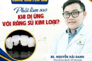 Phải làm sao khi bị dị ứng với răng sứ kim loại?