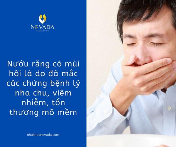 kẽ răng có mùi hôi, trị hôi kẻ răng, kẽ răng bị hôi, kẽ chân răng có mùi thối, răng có mùi hôi, chân răng có mùi thối, kẽ răng hôi, răng có mùi thối, chân răng bị hôi
