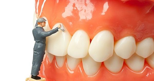 Lấy cao răng có tốt không