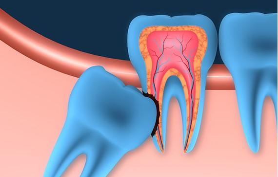 nhổ răng khôn có nguy hiểm không, nhổ răng khôn hàm trên có nguy hiểm không, nhổ răng khôn có nguy hiểm k, nhổ răng khôn có nguy hiểm ko