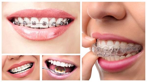 Niềng răng 1 hàm được không