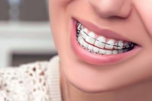 Niềng răng có nguy hiểm không? giải đáp tất tần tật