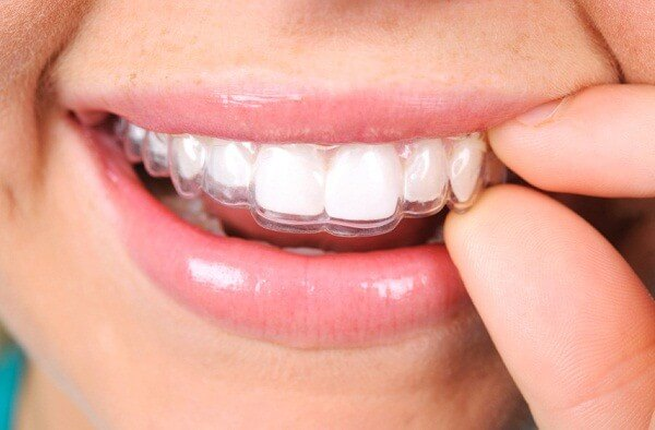 Chi phí niềng răng không mắc cài Invisalign