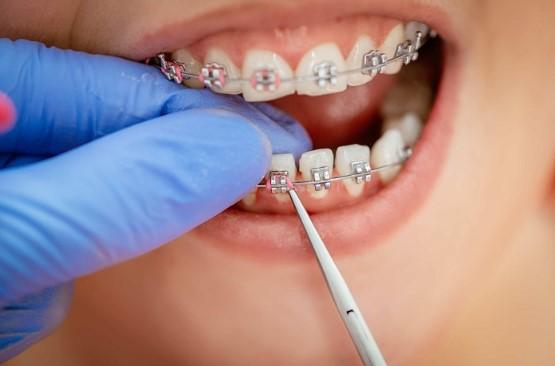 niềng răng không thành công, những ca niềng răng không thành công, trường hợp niềng răng không thành công, niềng răng thất bại, niềng răng thất bại webtretho, những ca niềng răng thất bại, những trường hợp niềng răng thất bại