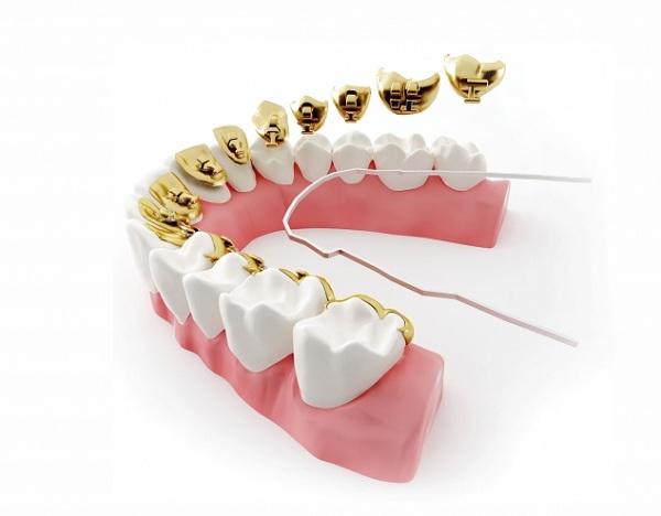 niềng răng mắc cài mặt lưỡi, mắc cài mặt lưỡi, niềng răng mặt lưỡi