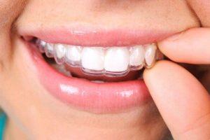 Niềng răng thẩm mỹ không mắc cài   Niềng răng công nghệ mới
