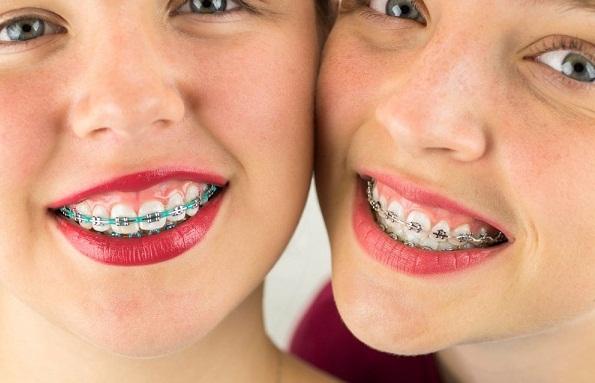niềng răng hô có đau không, quy trình niềng răng hô có đau không