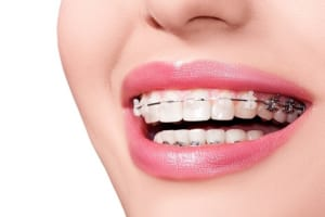 Răng bị lệch nhân trung làm sao để khắc phục?