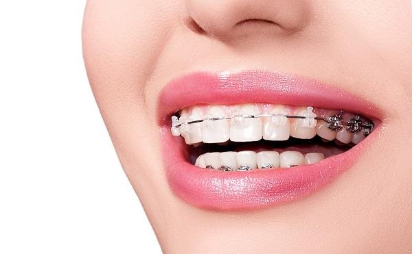 Răng bị lệch nhân chung