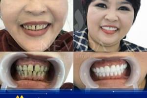 Răng bị nhiễm màu kháng sinh có thể tẩy trắng được không?