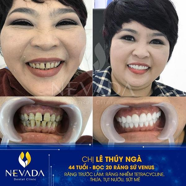 Răng bị nhiễm màu kháng sinh