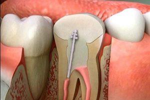 [Bác sĩ tư vấn] Răng đã lấy tủy tồn tại được bao lâu?
