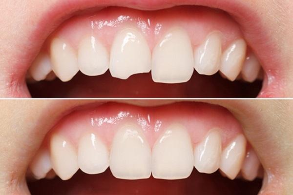 Răng mẻ có dán sứ Veneer được không