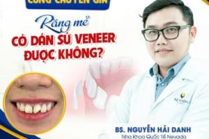 Răng mẻ có dán sứ Veneer được không?