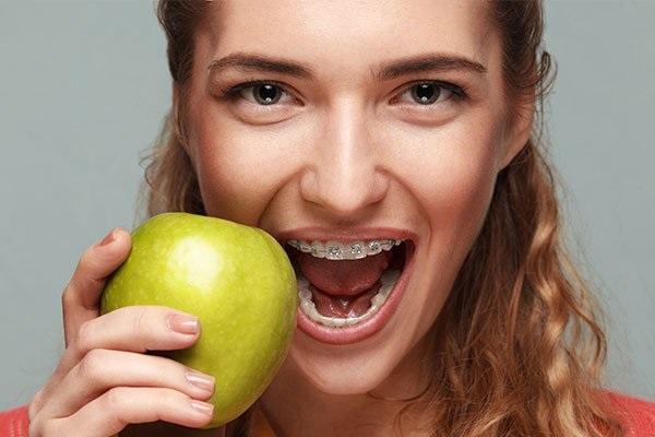 Niềng răng bao lâu thì ăn được