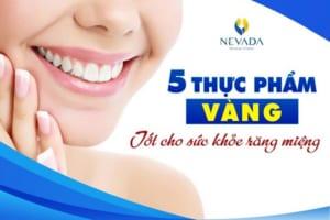 Top 5 thực phẩm vàng tốt cho sức khỏe răng miệng