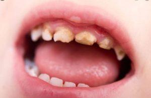 trẻ bị sâu răng hàm phải làm gì, Trẻ em sâu răng hàm phải làm gì, trẻ 5 tuổi sâu răng hàm, trẻ 4 tuổi sâu răng hàm, trẻ bị sâu răng hàm trên, trẻ 3 tuổi bị sâu răng hàm, trẻ 2 tuổi bị sâu răng hàm, trẻ em bị sâu răng hàm phải làm gì, bé bị sâu răng hàm sữa, trẻ bị sâu răng hàm, bé bị sâu răng hàm, bé 5 tuổi bị sâu răng hàm phải làm sao, bé bị sâu răng hàm phải làm sao, răng hàm của trẻ bị sâu, trẻ bị sâu răng hàm sữa