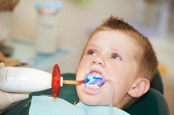 Trẻ em bị sâu răng hàm phải làm gì?