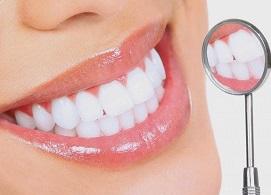 Bọc răng sứ Shining Line - Không còn răng xỉn màu, ố vàng, thưa, khấp khểnh, mòn..., Nha Khoa Nevada