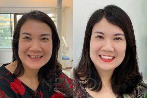 Ưu điểm và nhược điểm của phương pháp bọc răng sứ Zirconia?