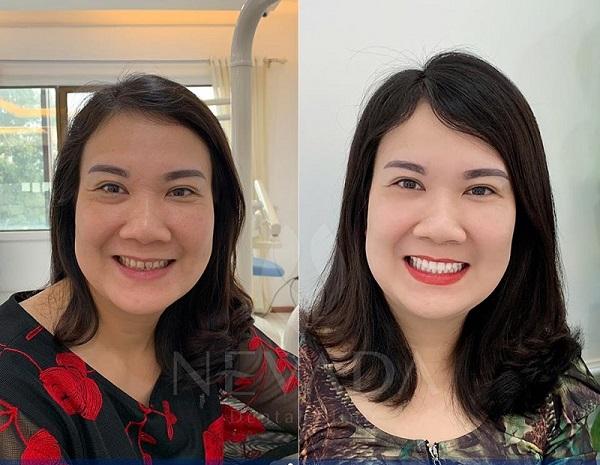 Ưu điểm và nhược điểm của phương pháp bọc răng sứ Zirconia