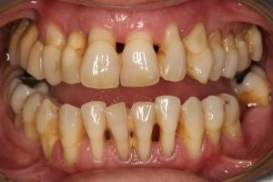 Nguyên nhân hở chân răng và cách khắc phục