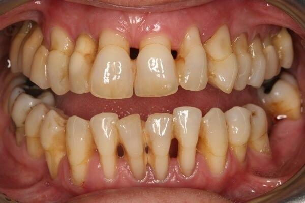 hở chân răng, viêm lợi hở chân răng, Nguyên nhân hở chân răng, Bị hở chân răng do cấu trúc của răng, Cách chữa hở chân răng, Cách chữa hở chân răng ở mức độ nhẹ, Cách chữa hở chân răng nặng, chân răng bị hở